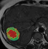 Masterclass in Imaging of Hepatobiliary Tumours